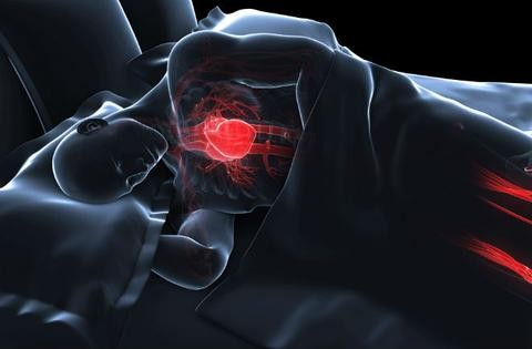 Shorter sleep duration increases mortality risk in CVD, stroke patients.